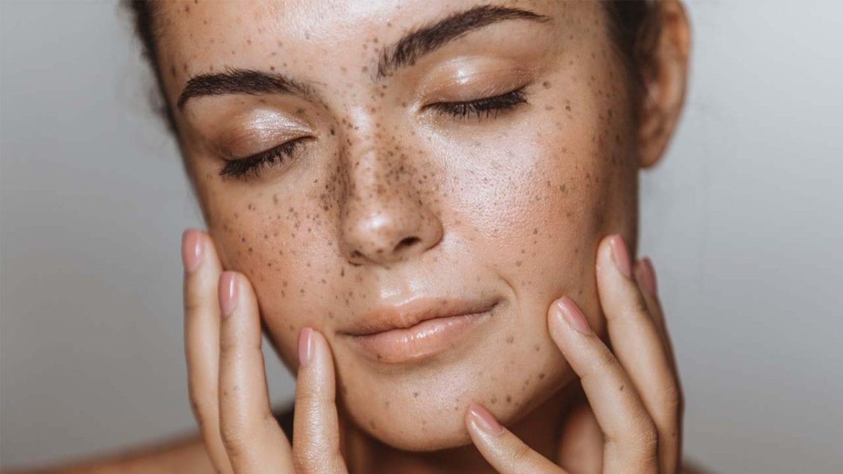 Les soins selon les types de peau: la peau mixe