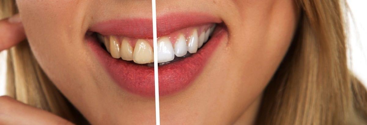 Le blanchiment dentaire en deux étapes : avant et après.