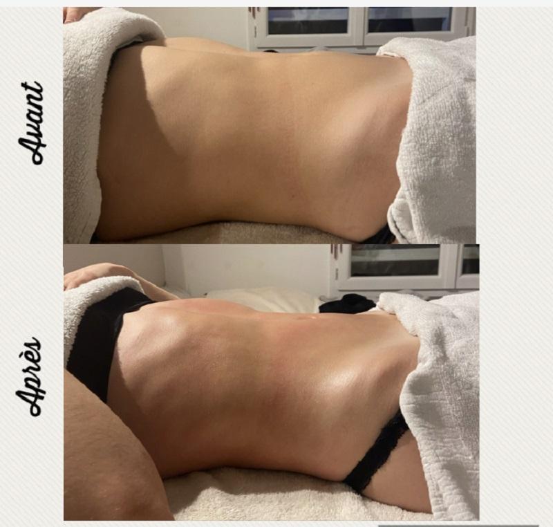 Cy beauty - drainage lymphatique méthode Renata França, résultats probants